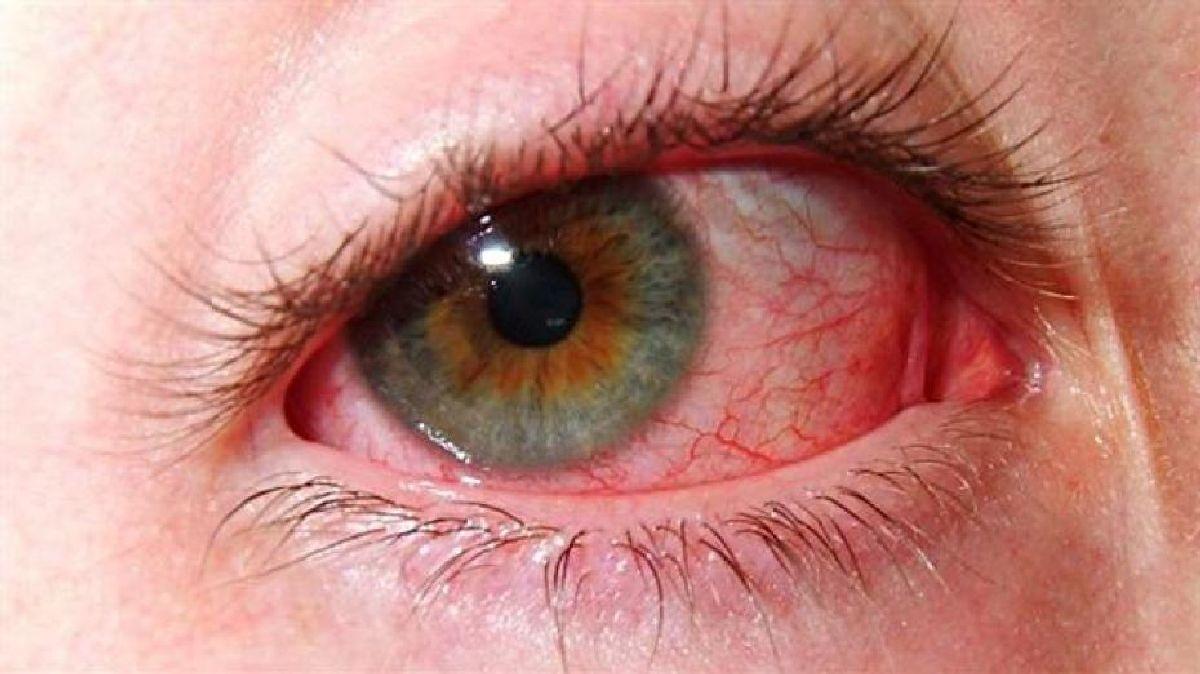pourquoi vous avez les yeux rouges apr s la piscine